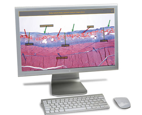 telepathology-with-annotation-software