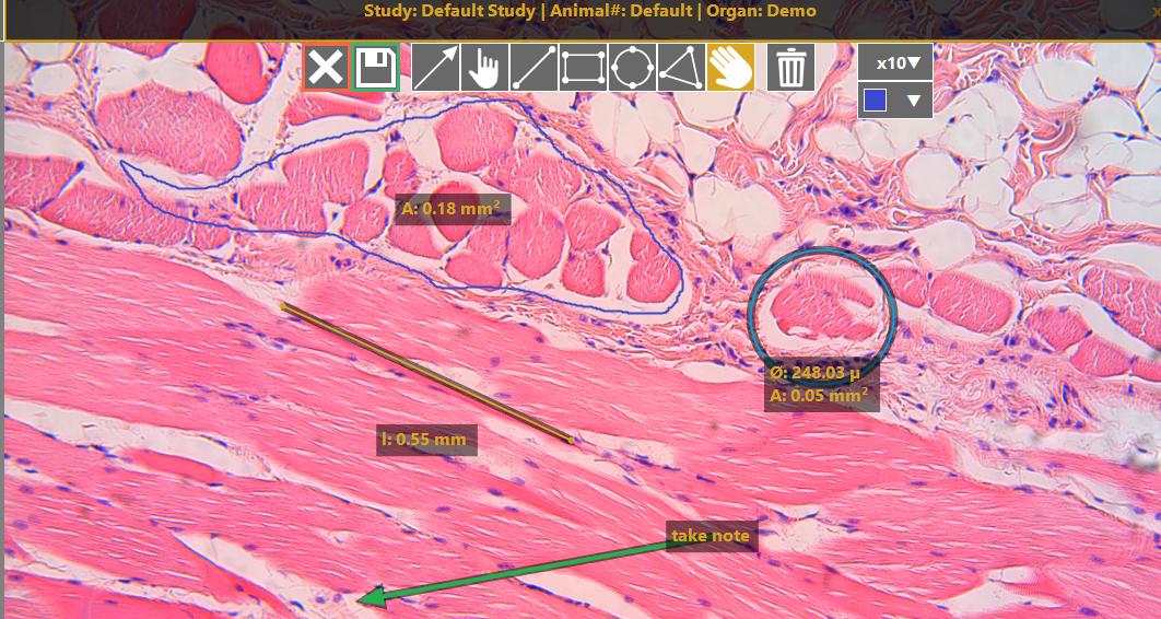 augmented reality for pathology
