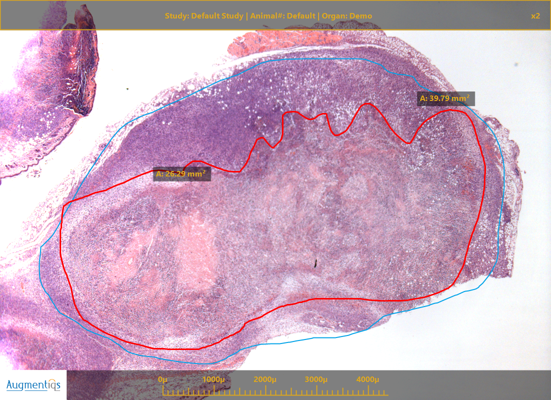 microscope-camera-digital-pathology-with-annotations