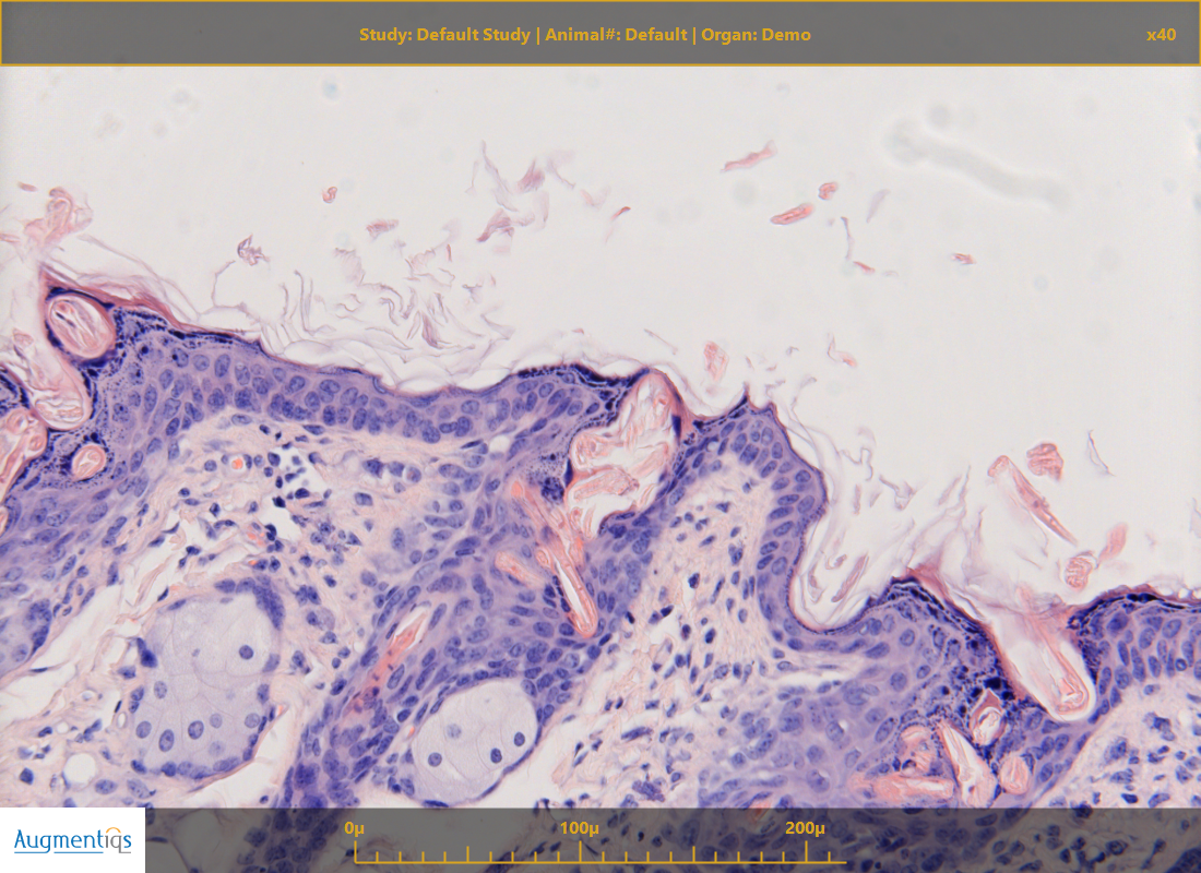 compare microscope pathology camera FOV