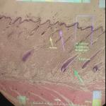 ARM Study for Breast Tumor Measurement