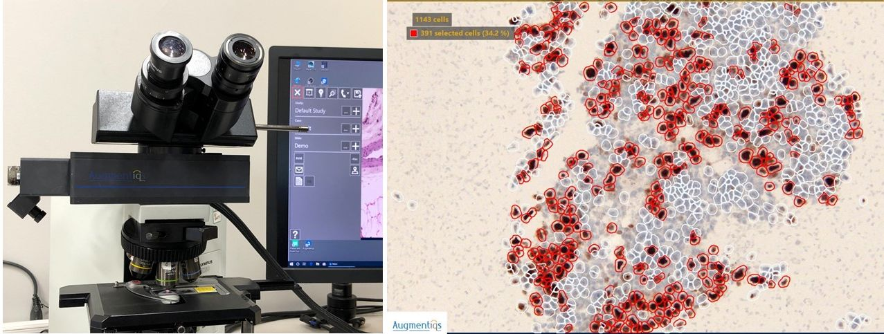 augmented-reality-microscope-for-pathology-research