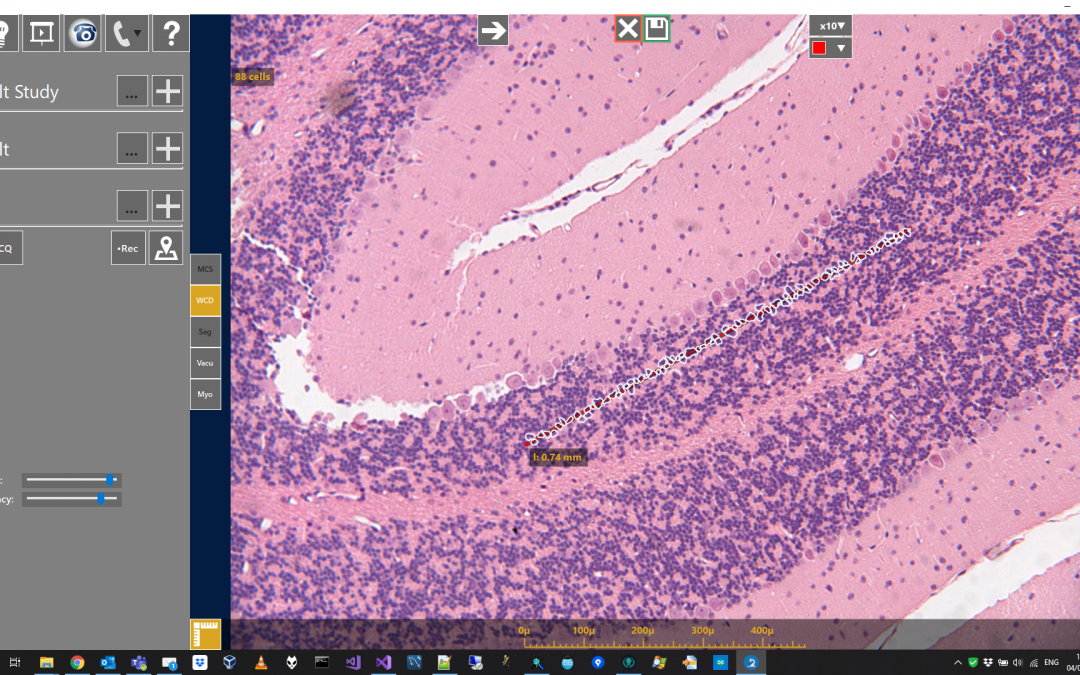 Cell Density Pathology Software