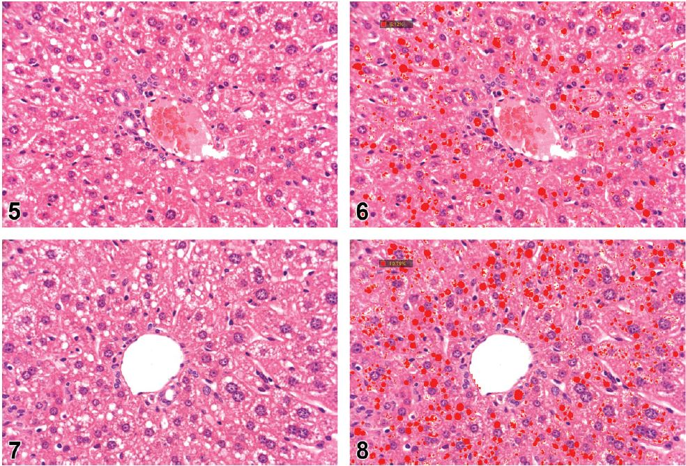 Utilization of AI for Fatty Liver
