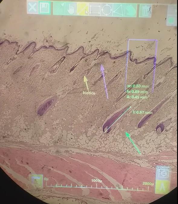 ARM – Augmented Reality Microscopy Clip
