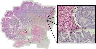 whole-slide-imaging-telepathology